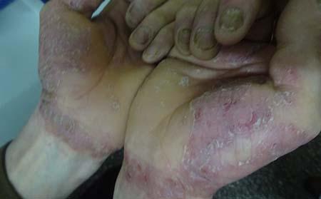 引起银屑病的病因是什么啊